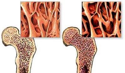 骨质疏松椎体压缩性骨折手术椎体...