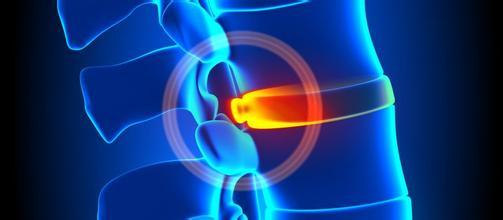 骨科科普(一):脊柱微创手术与...