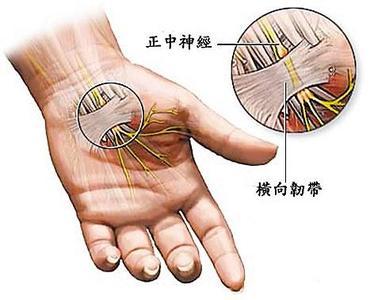 腕管综合征-常用检查方法