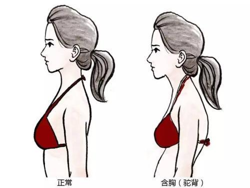 美女含胸驼背正确矫正锻炼