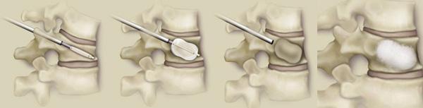 经皮椎体球囊扩张后凸成形术(PKP)