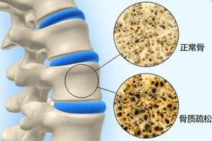 骨质疏松的防护和治疗