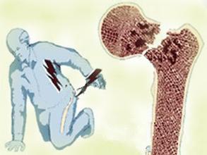 骨质疏松性骨折的治疗和管理